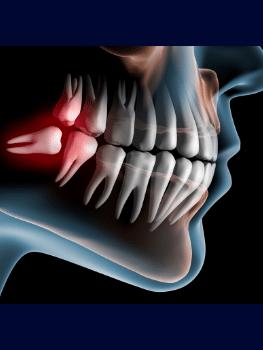 Cirugia oral Madrid