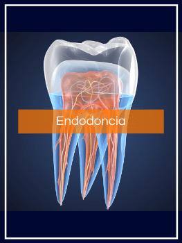 Tratamientos dentales Endodoncia Madrid