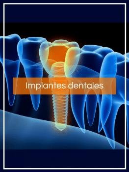 Tratamientos dentales Implantes dentales Madrid
