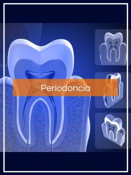 Tratamientos dentales Periodoncista Madrid