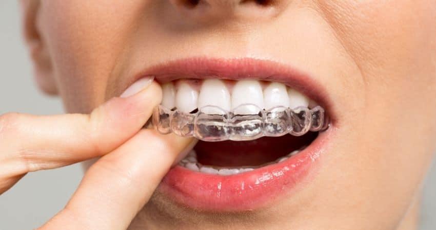 Mujer colocándose un aparato dental invisible